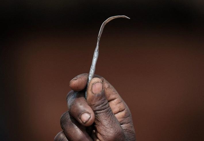 Africa: why do female genital mutilation persist?