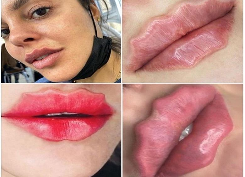 Can it get any crazier? Octopus lips conquer Instagram