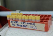 Australian scientists test Covid-19 vaccine