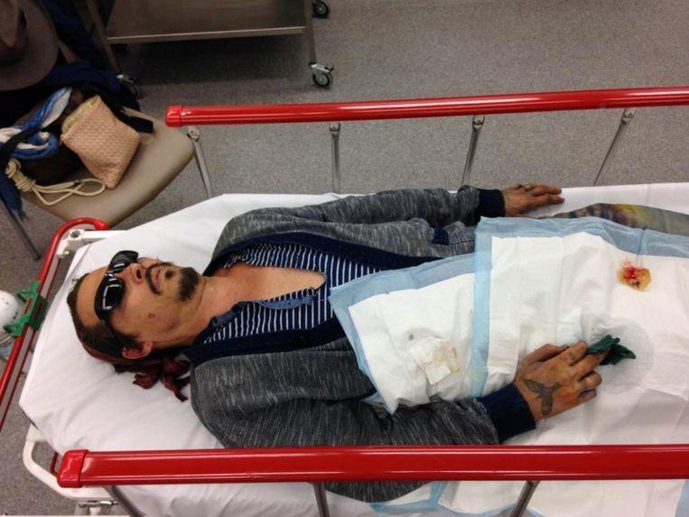 Johnny Depp is taken to hospital after losing a fingertip