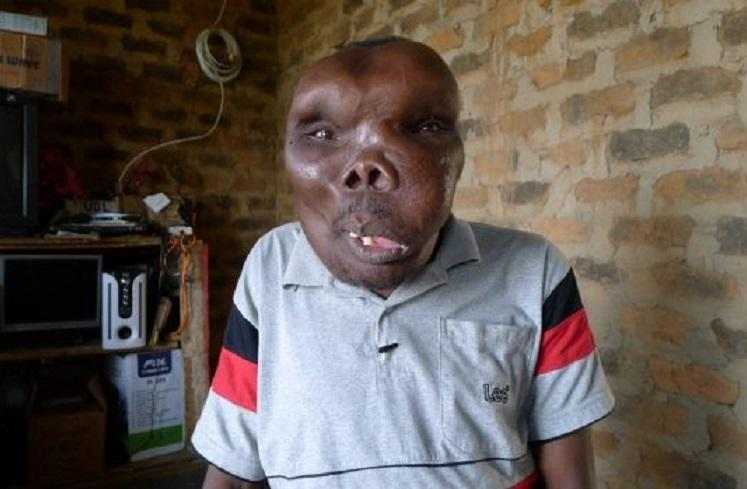 "Ugandan ""ugliest man"" marries third woman with great pomp"