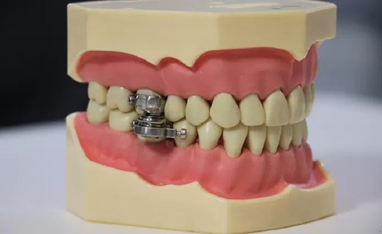 Mouth torture or weight loss? This device clenches jaws for diet